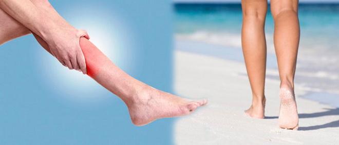 Покраснение ног