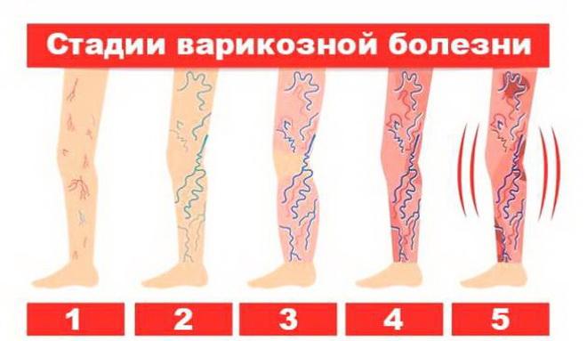 Стадии варикозной болезни