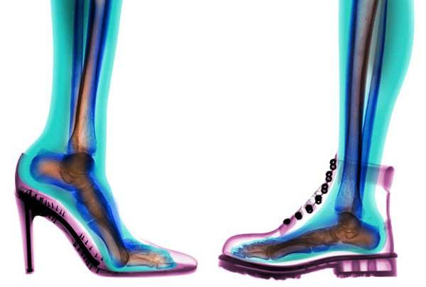 Удобная и неудобная обувь