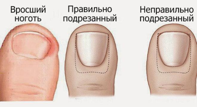 Вросший ноготь