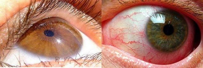 Флебопатия сетчатки глаз