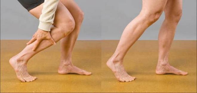 Заболевание сосудов ног