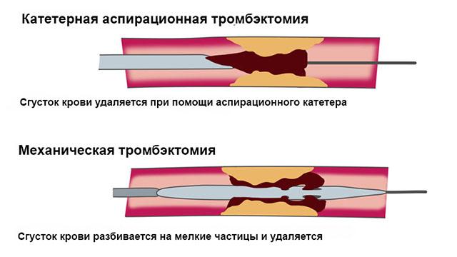 Удаление тромба хирургическим путем
