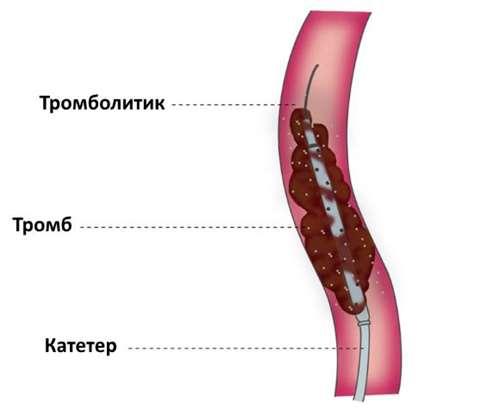 Лечение тромбоэмболии катетером