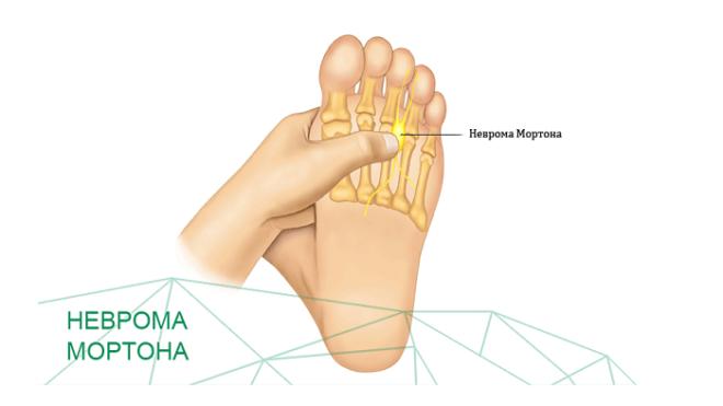 Локализация боли при невроме Мортона