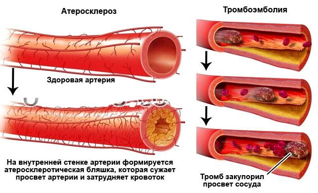 Тромбоэмболия при атеросклеротическом поражении