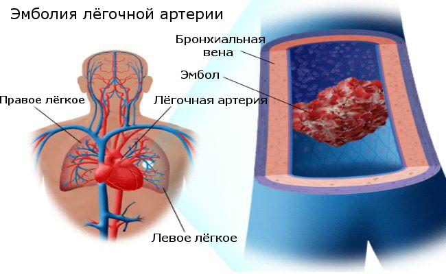 Закупорка легочной артерии