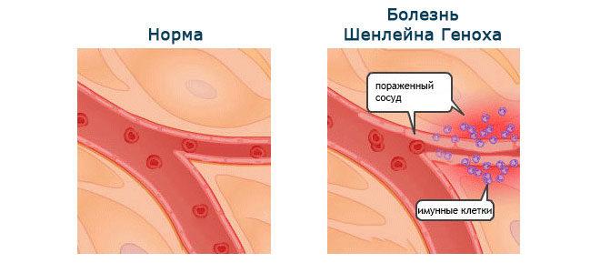 Механизм развития болезни Шелейна Геноха