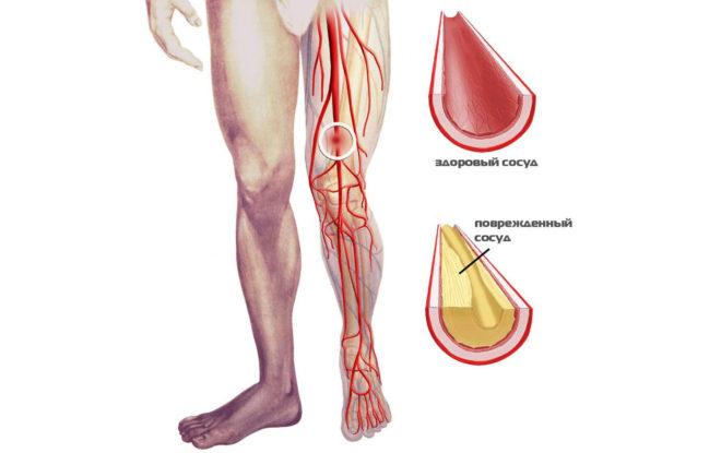 Атеросклеротическая язва