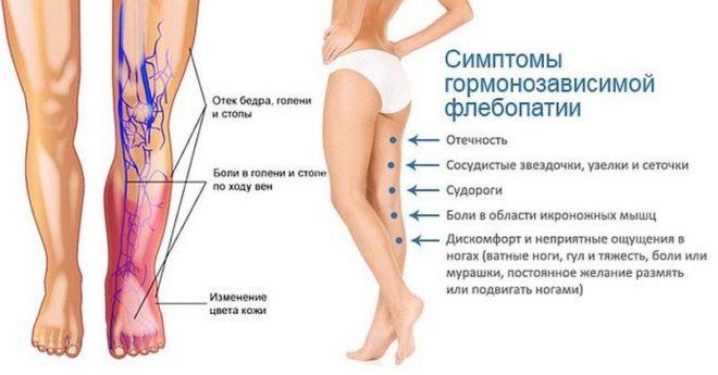 Флебопатия ног из-за гормональных нарушений