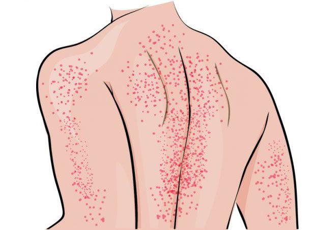 Тромбоцитопеническую пурпуру по-другому называют болезнью Верльгофа.