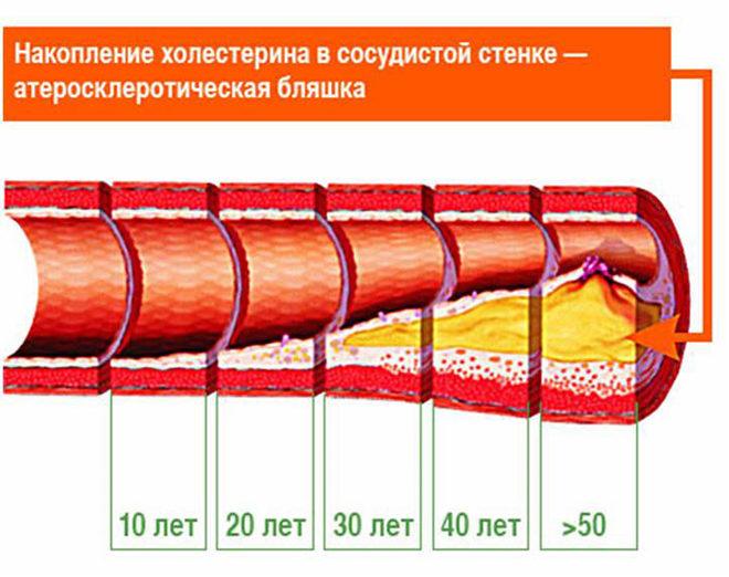 Вредный холестерин накапливается в организме