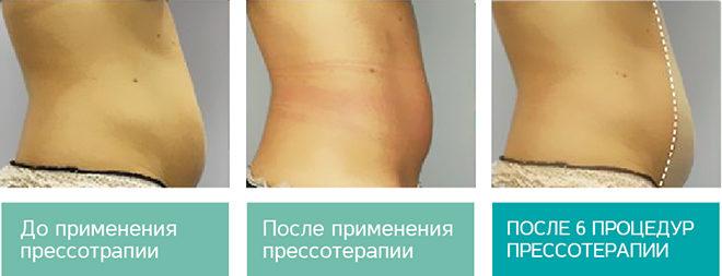 До и после прессотерапии