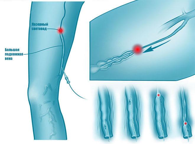 endovasal-laser-coagulation
