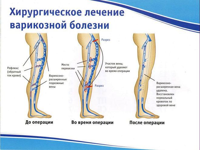 hirurgicheskoe_lechenie_varikoza_shema
