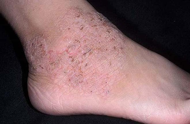 Дерматит - противопоказание для ношения антиварикозного белья