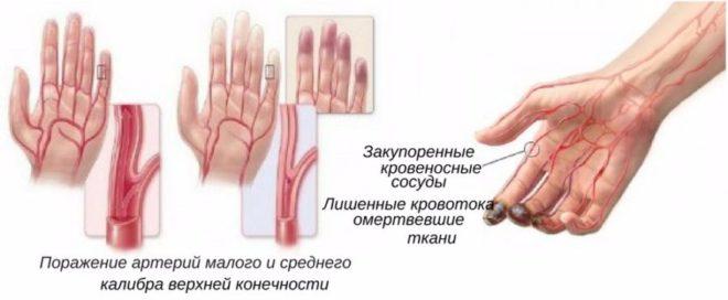 Облитерирующий тромбоангиит