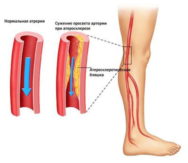 Окклюзия артерий