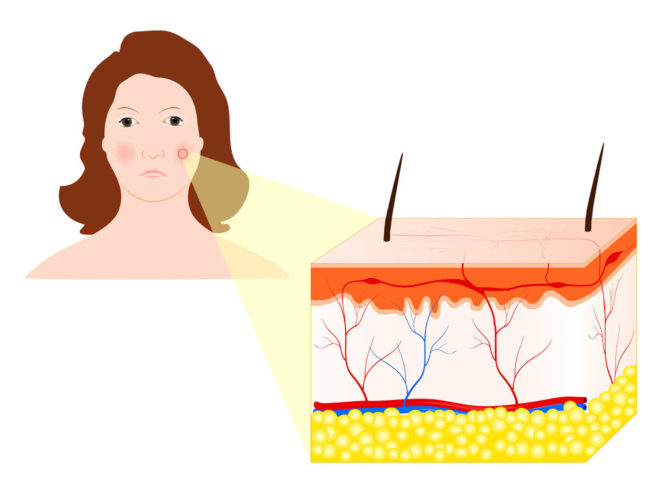 Строение сосудов кожи