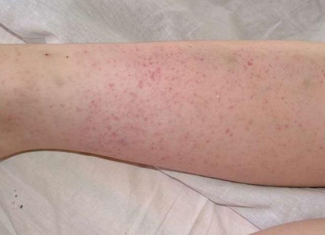 Проявление пурпуры на ноге