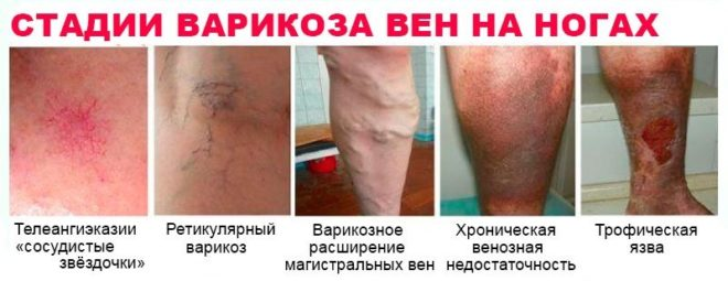 stadii-varikoza-ven-na-nogax