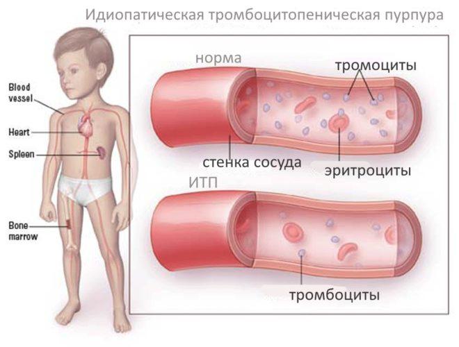 Идеопатическая тромбоцитопеническая пурпура у детей