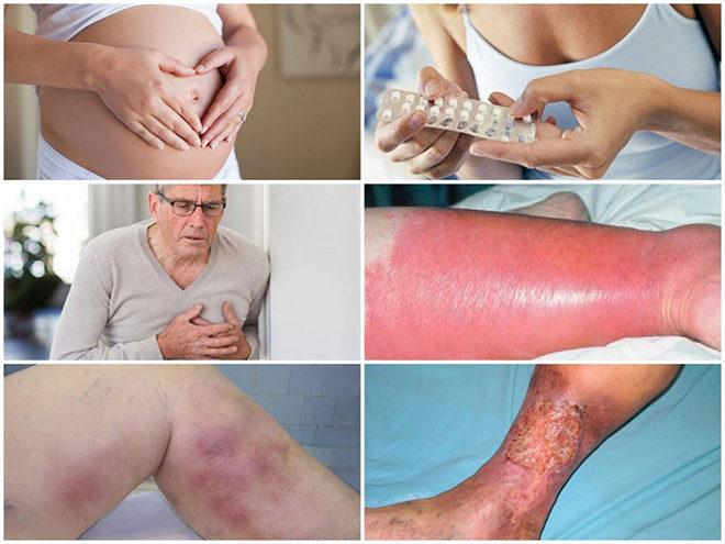 protivopokazaniya-k-provedeniyu-skleroterapii