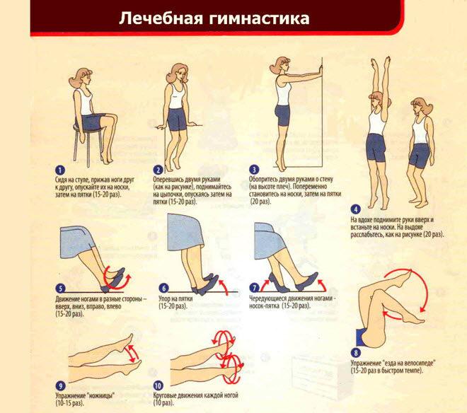 uprazhneniya-pri-varikoze-nog-1-1