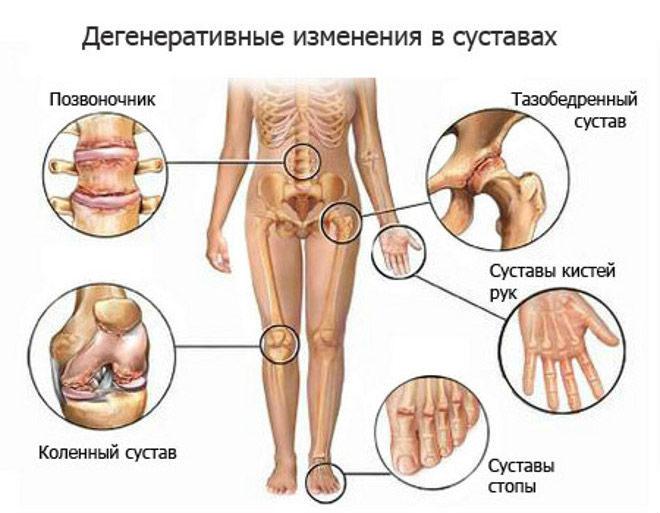 Дегенеративные измнения в суставах