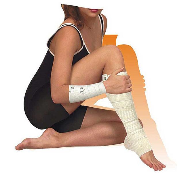 Как правильно бинтовать ногу эластичным бинтом при варикозе