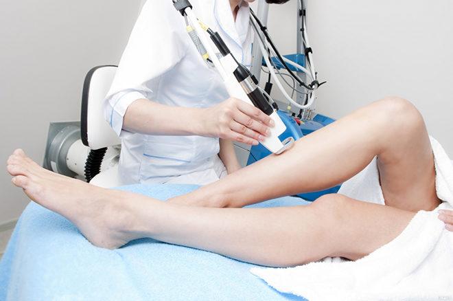 Допплерография ног