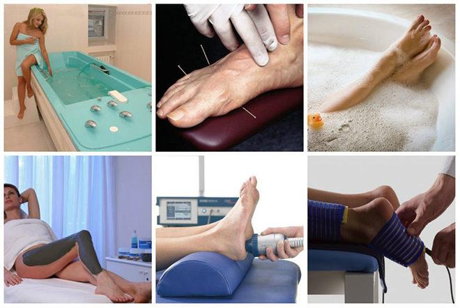 Физиотерапия при онемении ног
