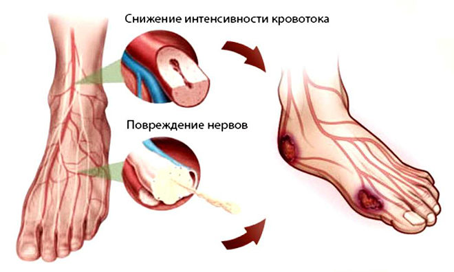 Повреждение периферических нервов при диабете