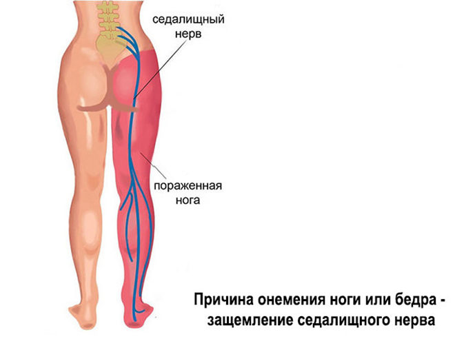 Онемение ног при парестезии бедра