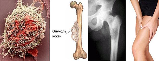 Опухоль костной ткани