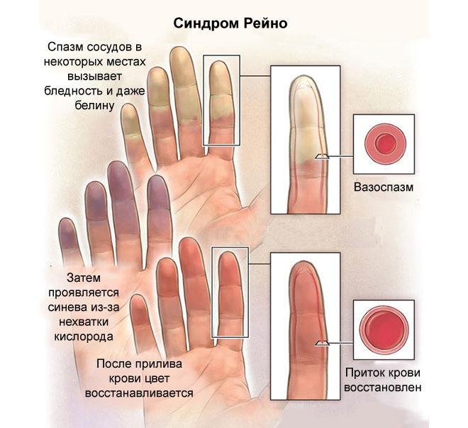 Синдром Рейно - симптомы и признаки