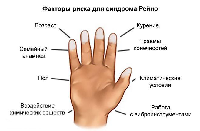 Факторы риска для синдрома Рейно