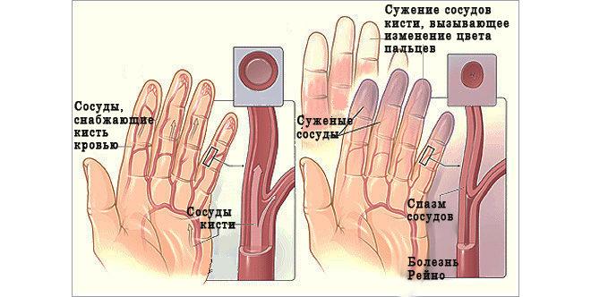 Синдром Рейно - симптомы