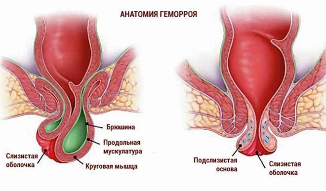 anatomia-gemorroia