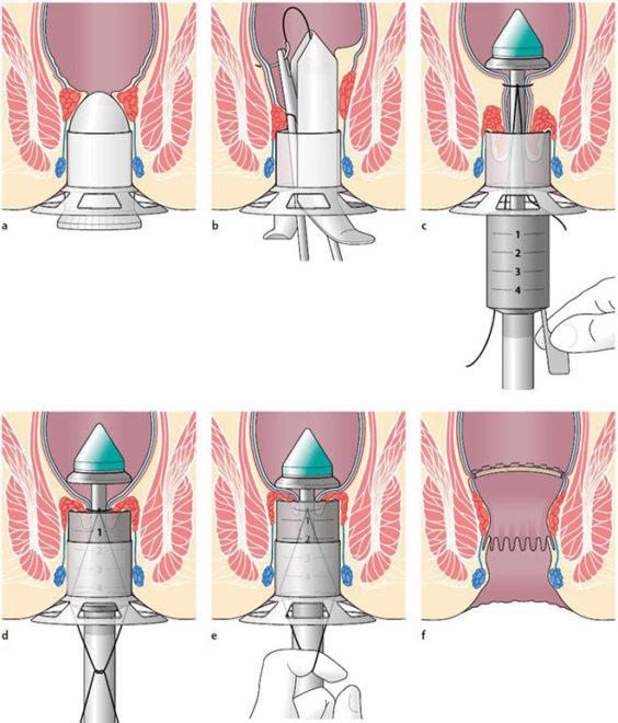 Геморроидопексия
