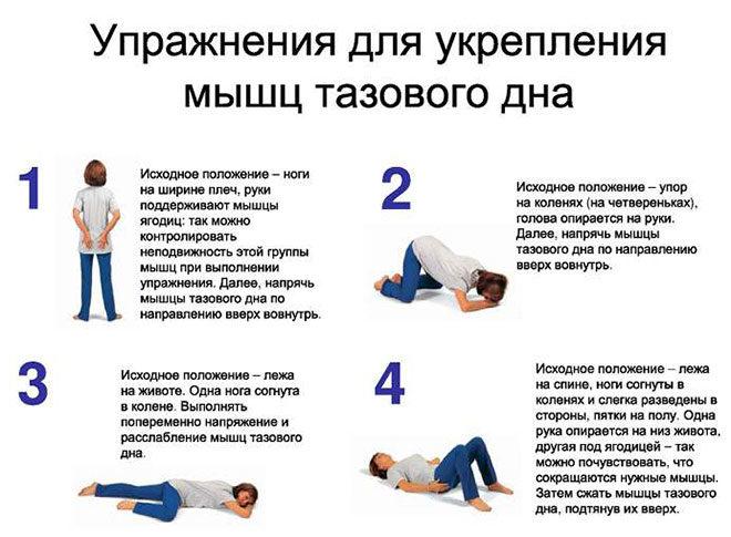 uprazhneniya-pri-gemorroe-zhenshhin