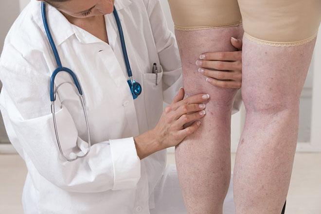 Осложнения при варикозе под коленом