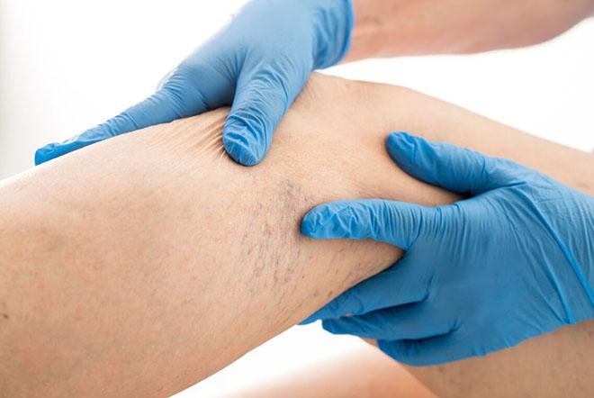 Симптомы возникновения варикоза под коленом