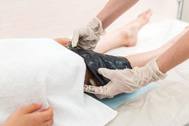 Грязелечение против венозных шишек на ногах