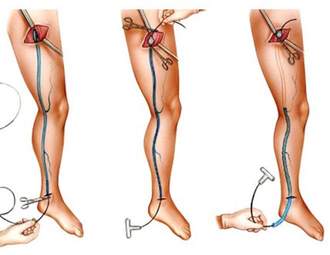 Хирургическое лечение варикоза под коленом