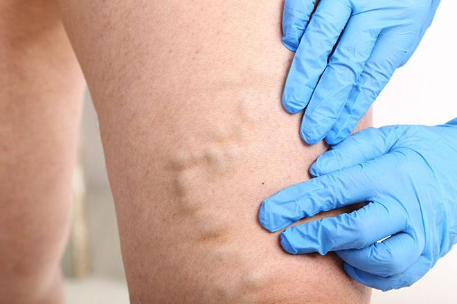 Причины возникновения варикоза под коленом