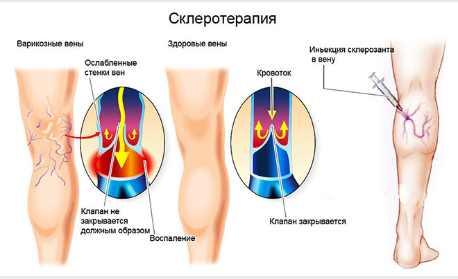 Процедура склеротерапия