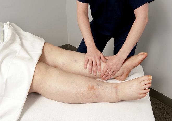 Польза массажа при отеках ног