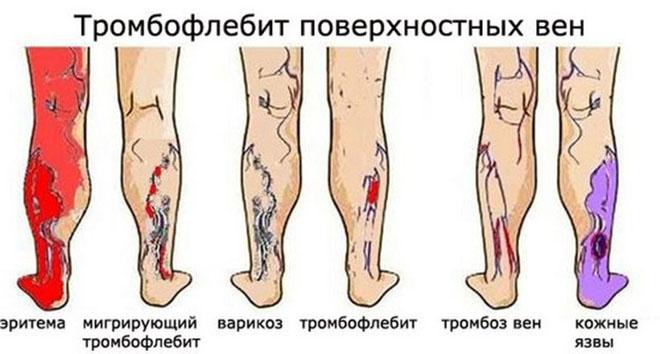 Чем опасен тромбофлебит