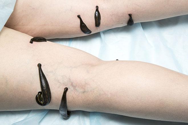 Гирудотерапия как альтернатива хиджаме